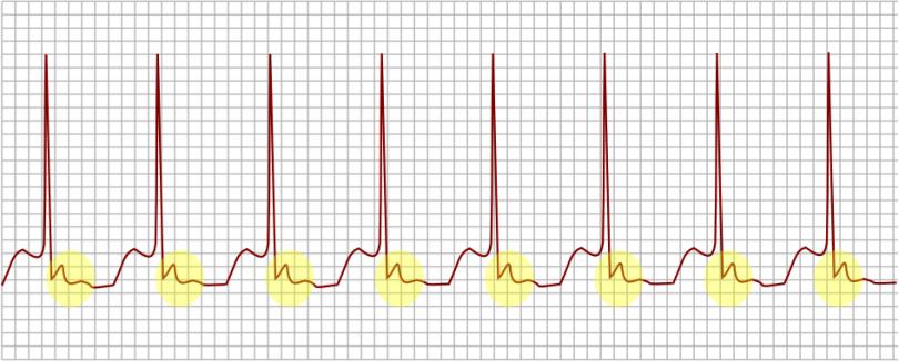 DIRETO AO PONTO: Taquicardia Supraventricular Paroxística (TSVP)