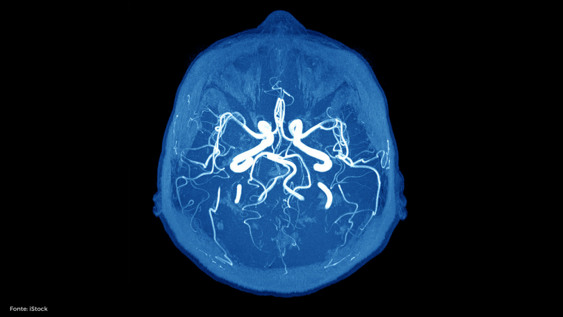 Direto ao Ponto: Acidente Vascular Encefálico (AVC)