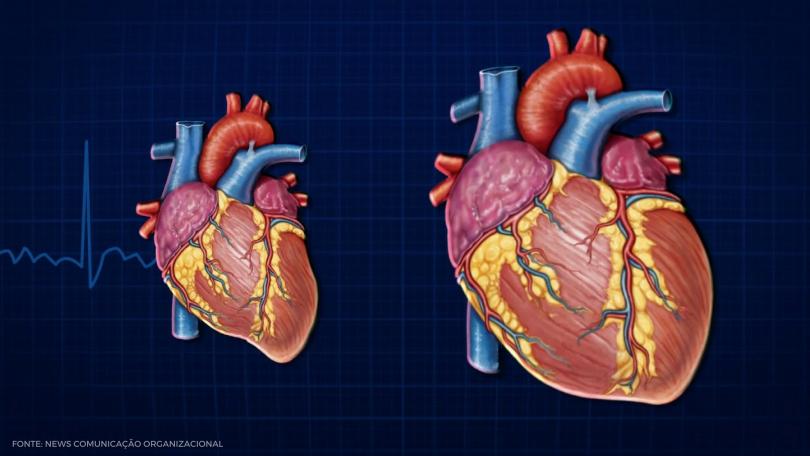Direto ao Ponto: Estadiamento da Insuficiência Cardíaca Congestiva