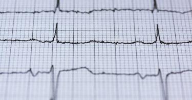DIRETO AO PONTO: Doença isquêmica do miocárdio
