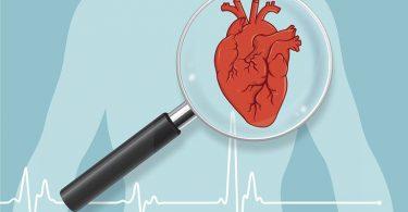 Prognóstico e Complicações da Síndrome Coronariana Aguda